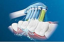 電動歯ブラシ超音波式